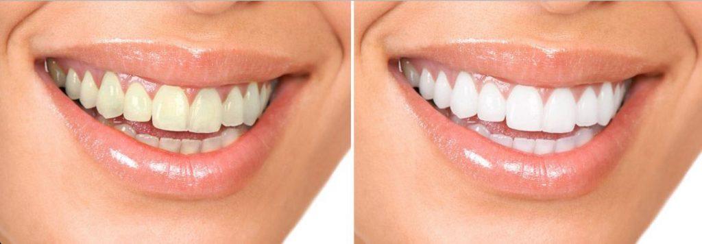 blanchiment des dents tunisie