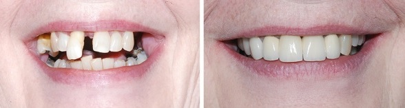 implant dentaire pas cher